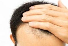 خوردن کدام غذاها باعث ریزش مو می شود؟