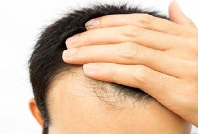 توصیه های مهم برای نگهداری از موی سر/روش های جدید برای از بین بردن چربی سر