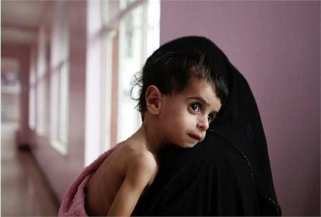 اختصاص ۸۴۰ میلیون تومان برای تامین سبدغذایی کودکان دچار سوء تغذیه