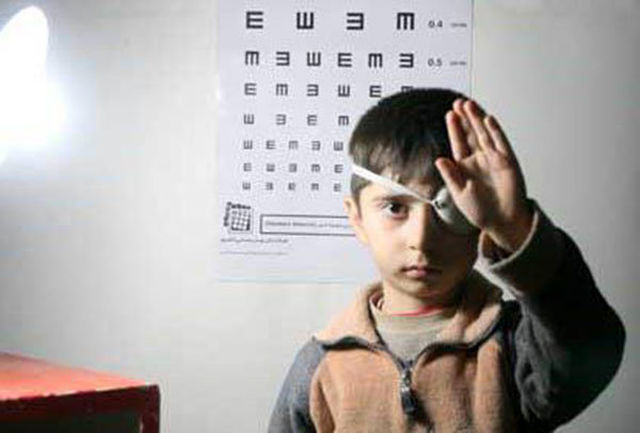 خطر بازگشت بیماری تنبلی چشم ۶۵ درصد است