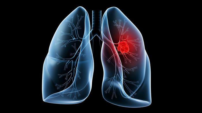 تشخیص سرطان ریه فقط با یک آزمایش خون