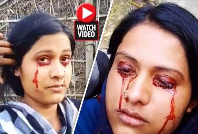 ماجرای عجیب تازه عروس جن زدهای که خون گریه میکند!+ عکس