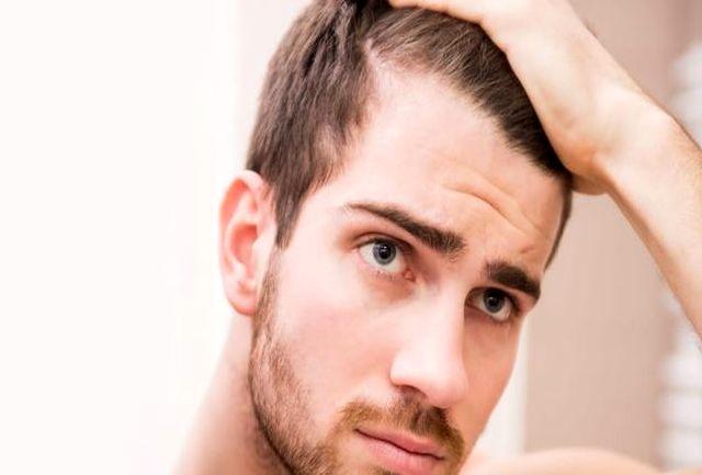 روش های ساده برای جلوگیری از ریزش موی تابستانی