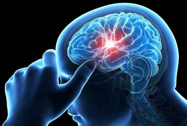 نشانه های سکته مغزی چیست و چگونه پیشگیری کنیم؟