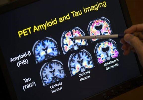 آیا ادعای کشف دارویی جدید برای درمان آلزایمر صحت دارد؟