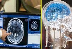 سوءاستفاده مالی از بیماران با نقشه برداری مغز/ دخالت افراد غیرپزشک