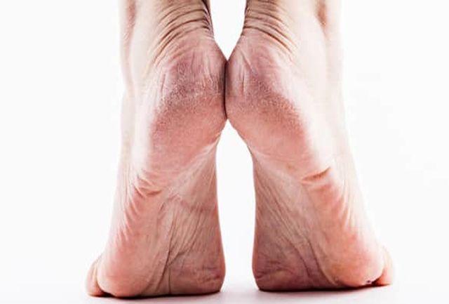 ترک پاشنه پای خود را چگونه درمان کنیم؟