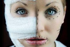 افراد جوامع توسعه یافته بیشتر جراحی زیبایی انجام میدهند