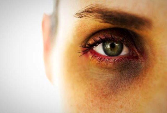 ترفندهایی برای از بین بردن عفونت چشم