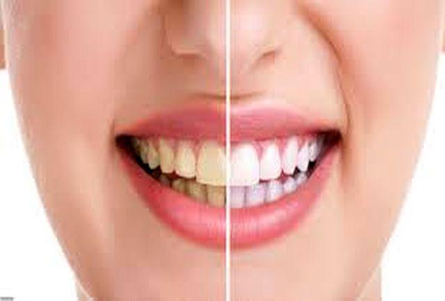 خمیردندانی حاوی نانوذرات سفیدکننده با قدرت تمیزکنندگی بیشتر