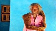 این مرد 40 سال است موهایش را نشسته! + عکس