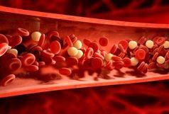 چه کار کنیم کلسترول خون را به سرعت کاهش دهیم؟