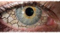 خشکی چشم قابل درمان میشود