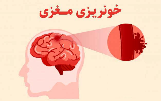 ضربه به سر در مبتلایان به هموفیلی باعث خونریزی مغزی میشود