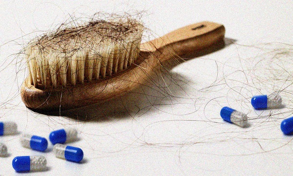 8 روش موثر برای درمان ریزش مو در بیماران کرونایی