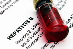 هپاتیت در کمین/علائم سرماخوردگی های ساده را دست کم نگیریم!