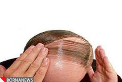 راهکارهای عملی برای قطع ریزش مو