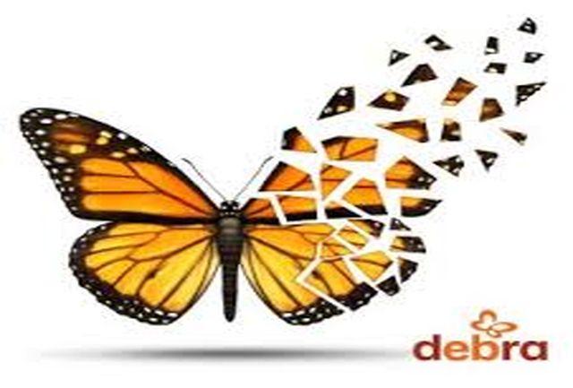 شناسایی 29 بیمار پروانه ای در استان همدان/ بیشتر بیماران پروانه ای ساکن تویسرکان هستند