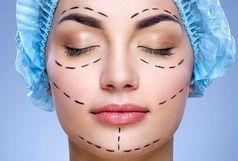 جراحان زیبایی و پلاستیک حاضر به انجام تغییرات عجیب و غریب در افراد نیستند/درمان میگرن با جراحی پلاستیک