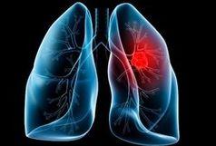 این نشانه ها از سرطان ریه خبر میدهند!