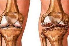 حدود هفتاد درصد از آرتروز های زانو در زنان است