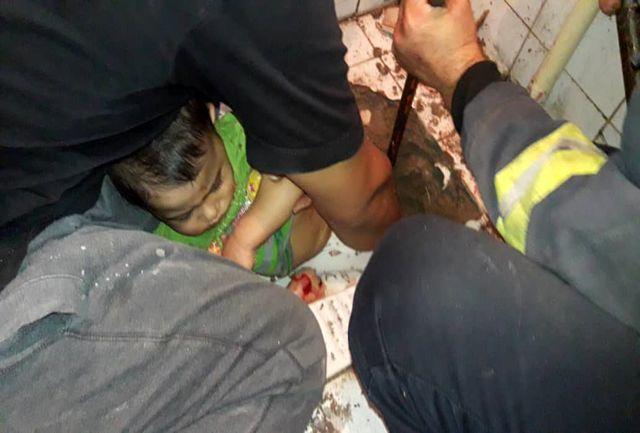 پای دختر بچه ۲ ساله از داخل سنگ سرویس بهداشتی رها سازی شد+ببینید