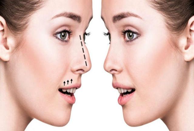 حداقل و حداکثر سن برای انجام جراحی بینی/ شایعترین عوارض جراحی بینی چیست؟