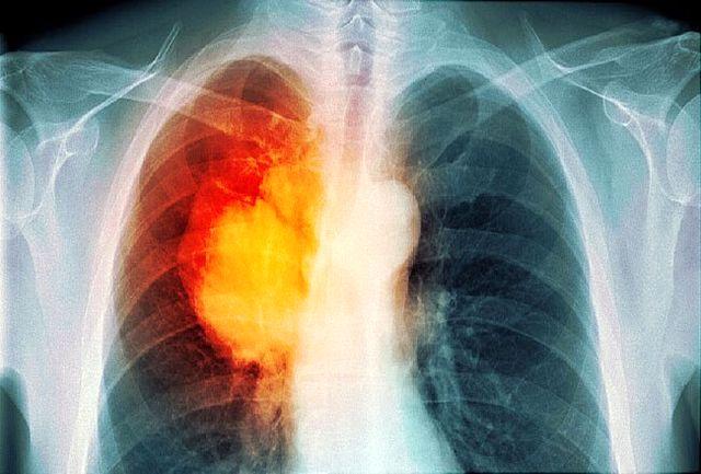 مرگبار ترین سرطان دنیا کدام است؟/ دلیل ابتلا به این نوع از سرطان چیست؟+جزییات