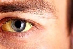 زردی چشم چه زمانی خطرناک میشود؟