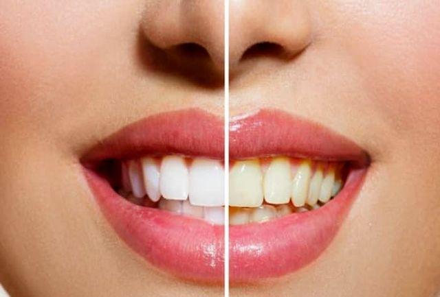 عادتهای غلطی که دندانهایتان را زرد میکند