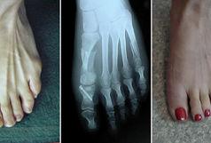 جراحی اصلاحی دفورمیتی های استخوان با دقت 98 درصدی انجام می شود