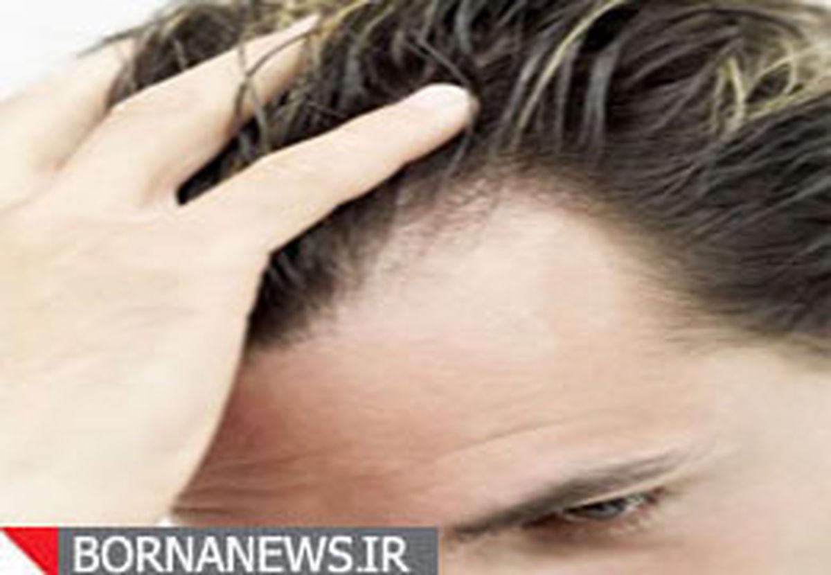 ۴ علت مهم ریزش مو که باید حتما بدانید