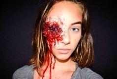 چهره وحشتناک دختر 15 ساله+عکس