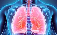 اینگونه از ریههای خود مراقبت کنید