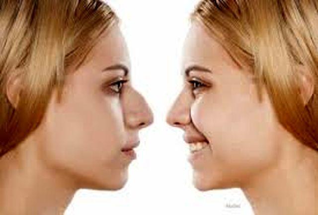 چرا بعد از عمل بینی دندان درد به سراغمان می آید