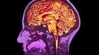 آخرین یافته ها درباره قابلیت های مغز انسان