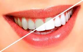 پودر سفید کننده دندان با نام تجاری والنسی را نخرید