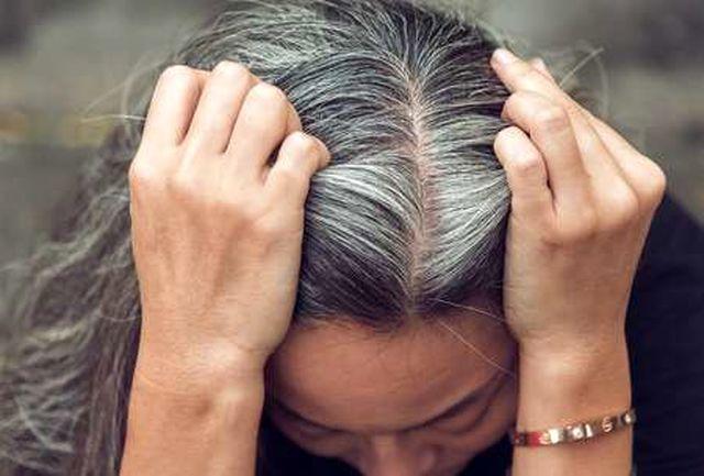 برای جلوگیری از سفید شدن مو شکلات بخورید