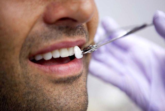لمینت های نادرست  سرآغاز از دست دادن دندان ها