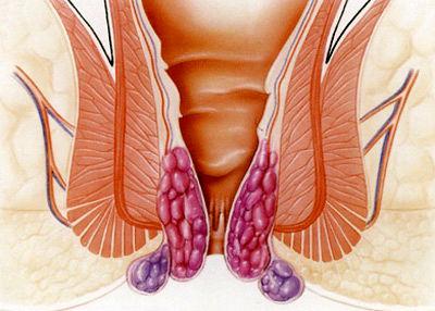 درباره درمان بواسیر یا هموروئید با لیزر چه می دانید؟