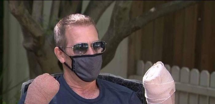 قطع انگشتان دست یک کرونایی بعد از 64 روز مقابله با کرونا!