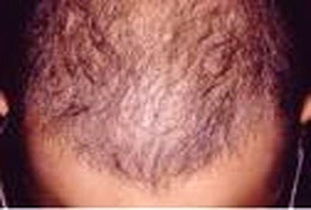 ارتباط سفیدشدن موها و فعالیت سیستم ایمنی بدن چیست؟