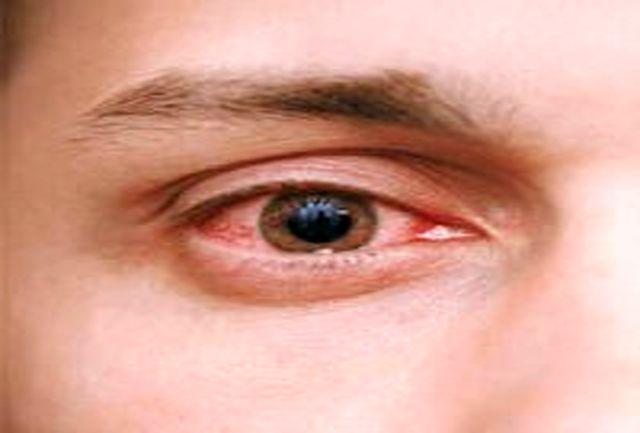 چه زمانی قرمزی چشم خطرناک میشود