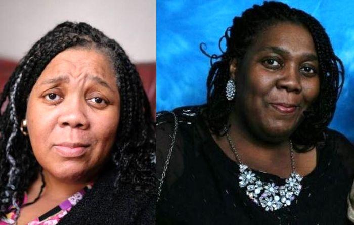 زن سیاه پوست با شیمی درمانی سفید شد!